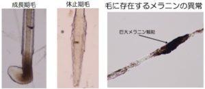 検査 成長期毛と休止期毛の割合を確認 毛に存在するメラニンの異常を確認
