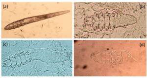 毛包虫の卵と幼虫と成虫の写真
