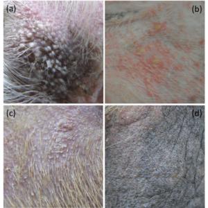 毛包虫症の皮疹写真