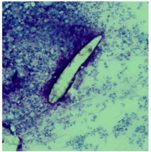 細胞診で見られた毛包虫の写真