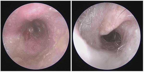 オトスコープ(耳道内視鏡)を用いて撮影した耳の中の写真