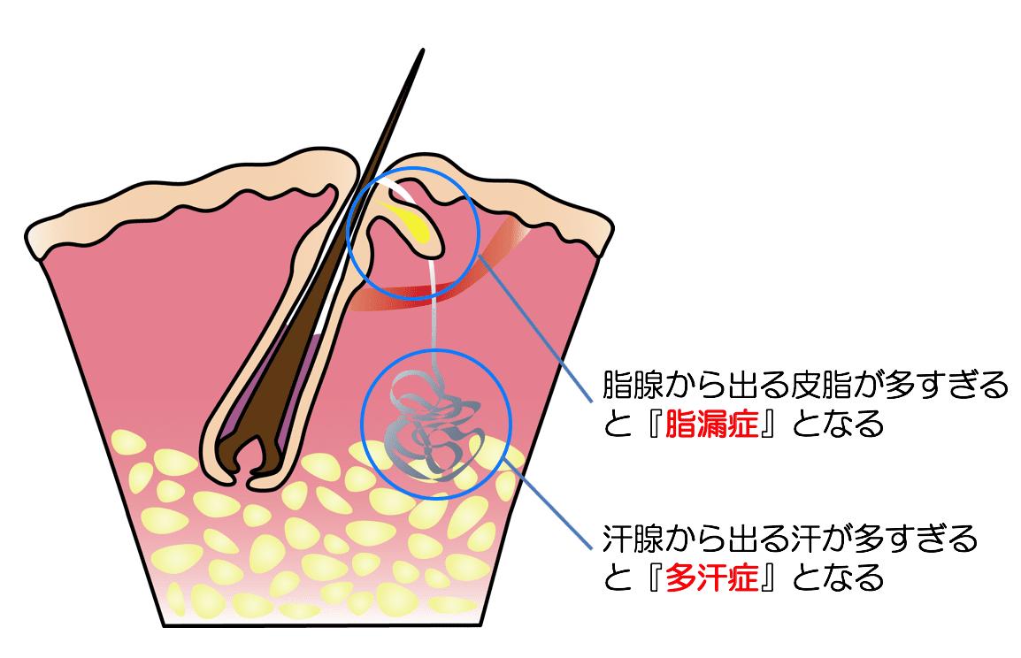 多汗症と脂漏症