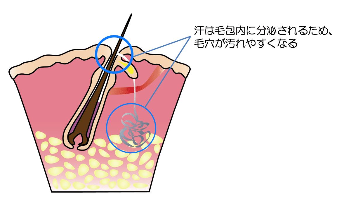 多汗症の解説